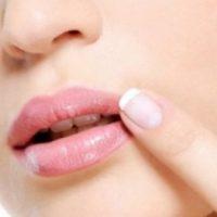 Curar rápido el herpes labial